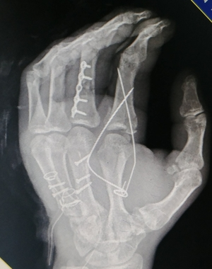 X ray picture immediately after surgery