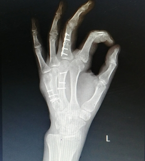 X ray after 2 months